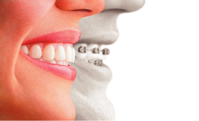 Invisalign Braces: Dentists and Dental Services near Golden Gate FL