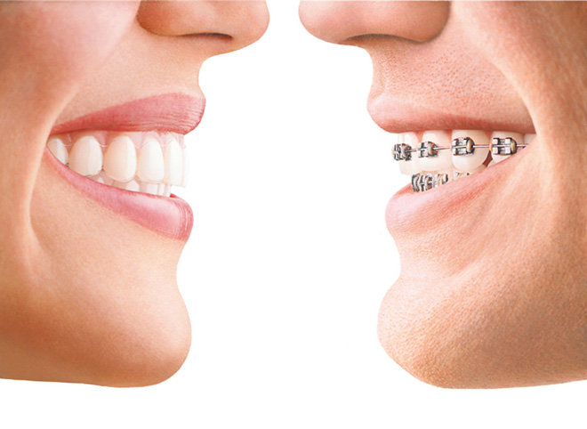Invisalign Braces: Dentists and Dental Services in Naples FL